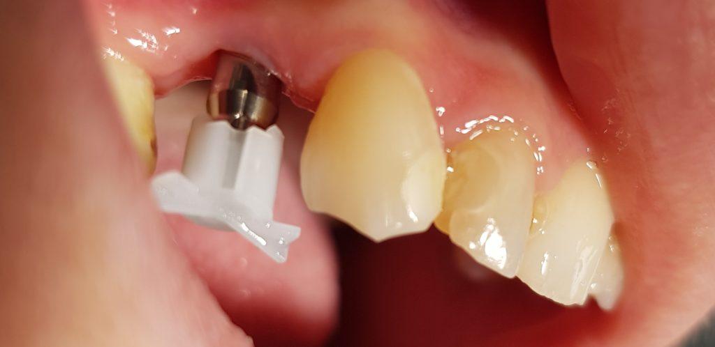 Traitement implantaire - Marquant