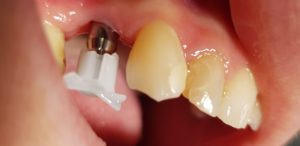 Traitement impantaire : empreinte dent - Marquant