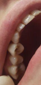 Traitement implantaire : implant dent - Marquant