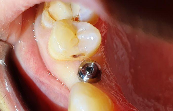 implant dentaire à lille Docteurs Marquant
